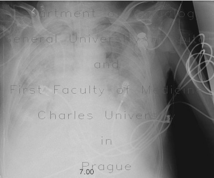 Radiology image - ARDS: Thorax, Lung: X-ray - Plain radiograph