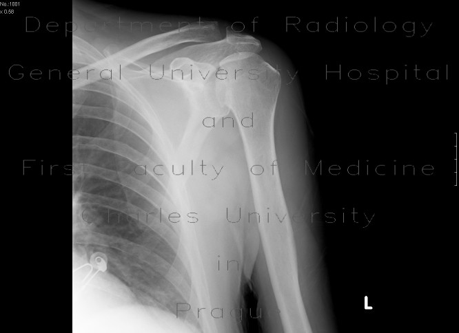 Radiology image - Abruption of articular surface of humeral head, osteonecrosis: Extremity, Bone: X-ray - Plain radiograph