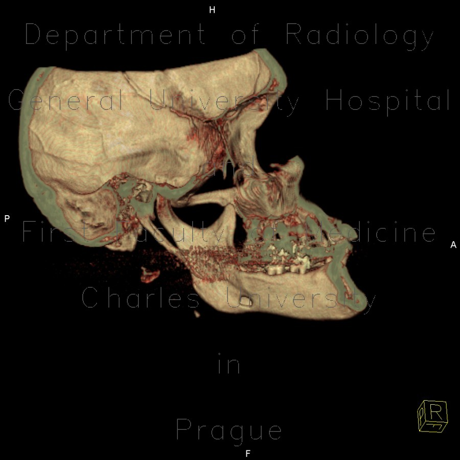 Radiology image - Accessory salivary gland, Stafne