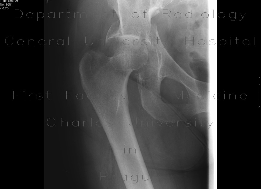 Radiology image - Acetabular fracture, posterior dislocation of the femoral head, dashboad injury: Spine and Axial, Bone: X-ray - Plain radiograph