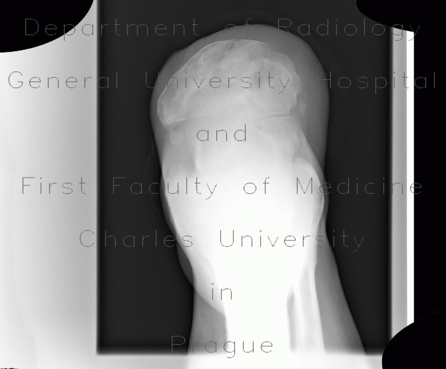 Radiology image - Acroosteolysis in diabetes mellitus, amputation in Chopart joint, gangrene: Extremity, Bone, Soft tissue: X-ray - Plain radiograph