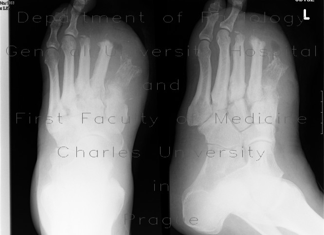 Radiology case: Acute osteomyelitis of the foot