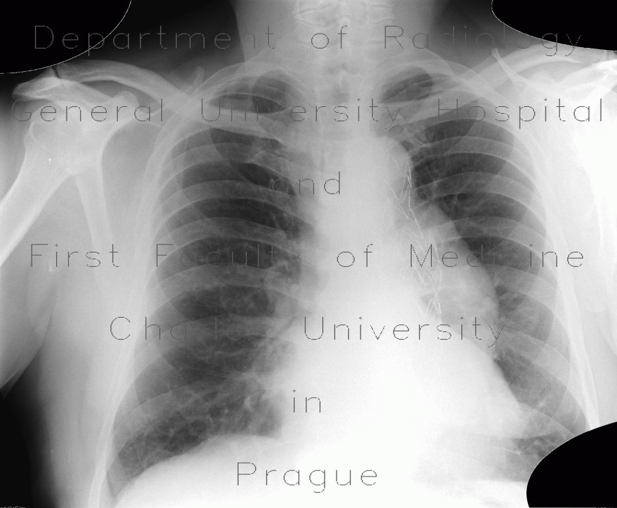 Radiology image - Aneurysm of thoracic aorta on chest radiograph: Thorax, Vessels: X-ray - Plain radiograph
