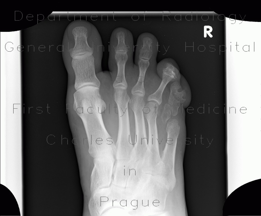 Radiology image - Anomally of the little finger of the foot, congenital: Extremity, Bone: X-ray - Plain radiograph