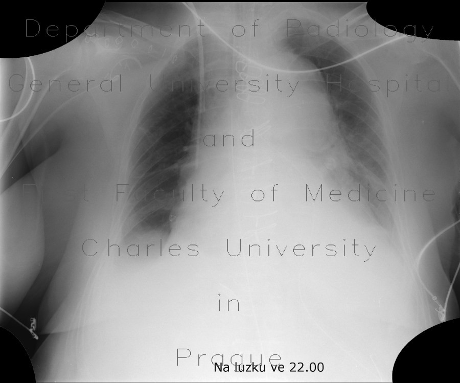Radiology image - Aortic dissection, Stanford A, hemopericard: Thorax, Heart, Vessels: X-ray - Plain radiograph
