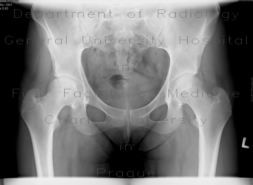 Radiology image - Aseptic necrosis of femoral head: Extremity, Bone: X-ray - Plain radiograph