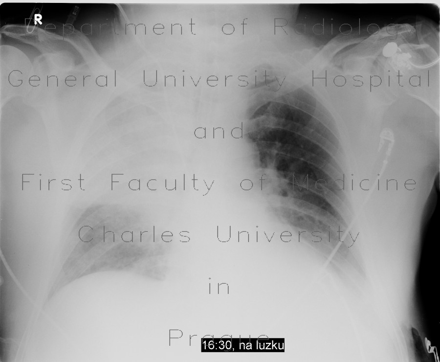 Radiology image - Aspiration pneumonia: Thorax, Lung: X-ray - Plain radiograph