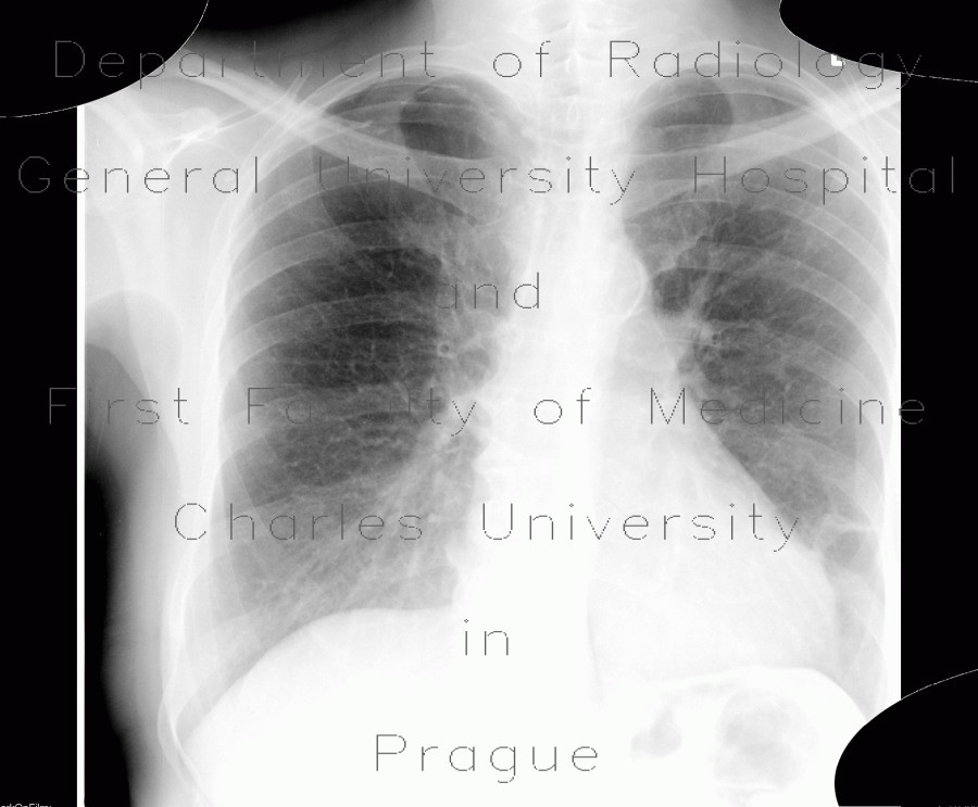 Radiology image - Atherosclerosis, subclavian artery: Thorax, Vessels: X-ray - Plain radiograph