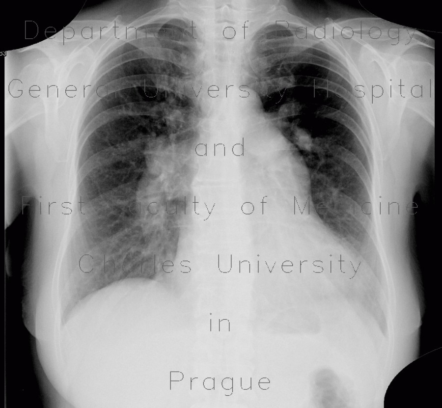 Radiology image - Atrial septal defect on chest radiograph: Thorax, Heart, Lung: X-ray - Plain radiograph