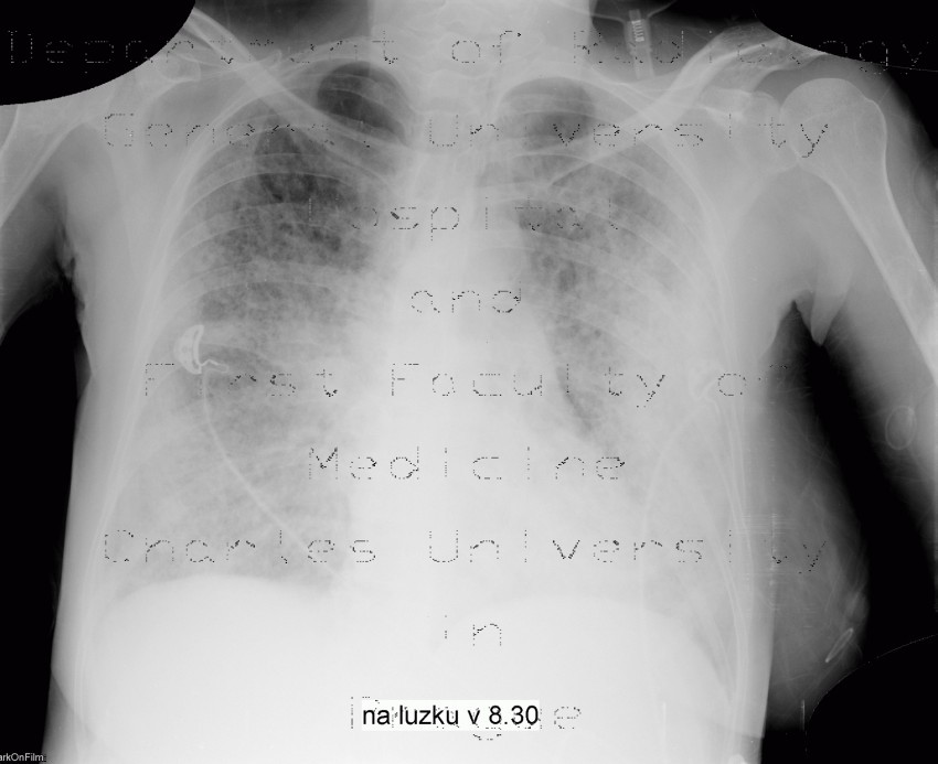 Radiology image - Atypical pneumonia, first case: Thorax, Lung: X-ray - Plain radiograph