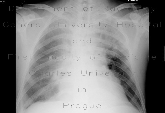 Radiology image - Atypical pneumonia, pleural effusion: Thorax, Lung: X-ray - Plain radiograph