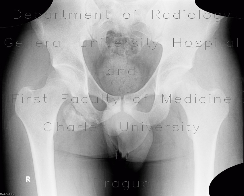 Radiology image - Avulsion of ischial tuberosity: Spine and Axial, Bone: X-ray - Plain radiograph