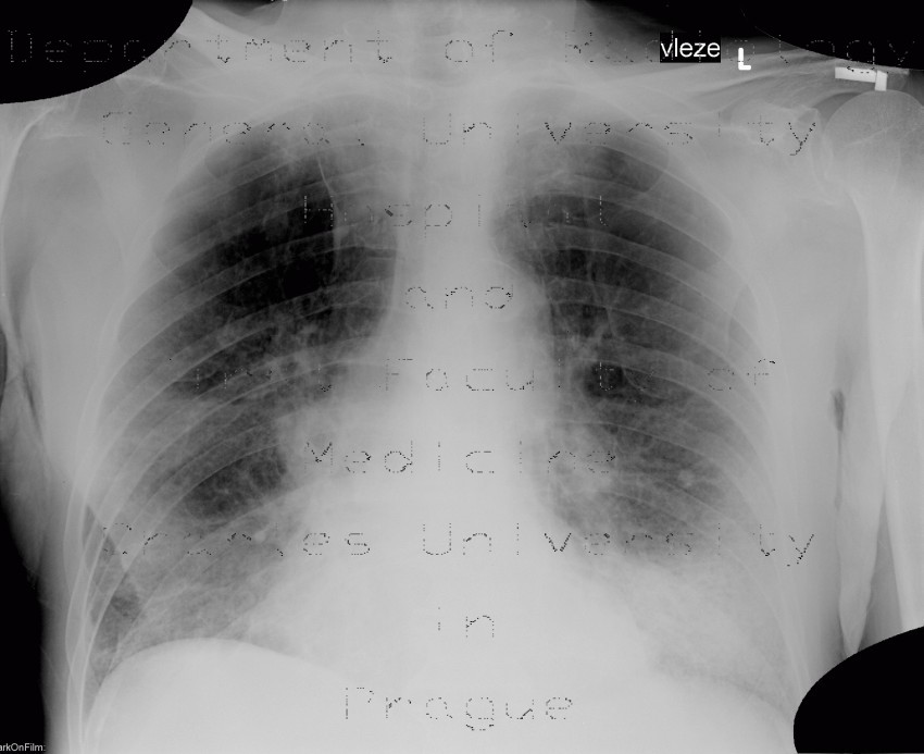 Radiology image - Basal bronchopneumonia: Thorax, Lung: X-ray - Plain radiograph