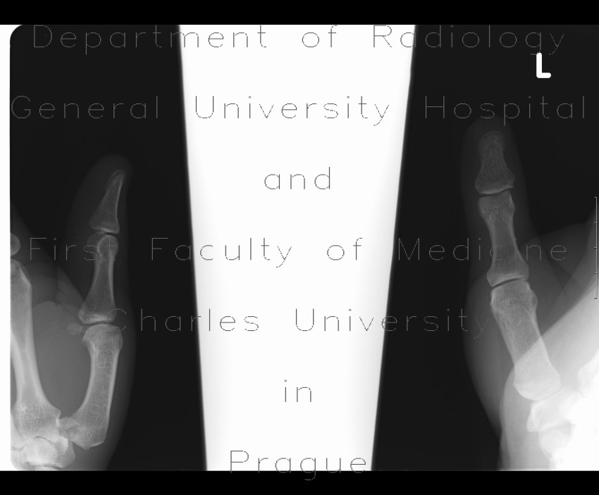 bennett fracture osteosynthesis Thesis poster template a1 according to the segmentation principle of multimedia learning theory, people comprehend better when information is presented in small.