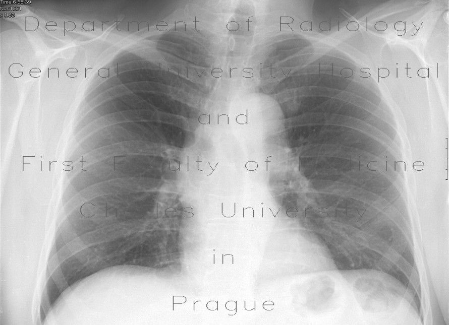 Radiology image - Bifid, forked rib: Thorax, Bone: X-ray - Plain radiograph