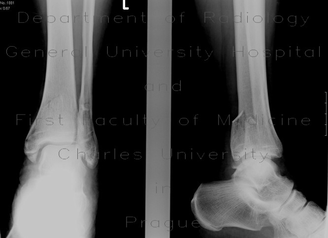 Radiology image - Bimalleolar ankle fracture with abruption of the posterior edge of tibia: Extremity, Bone: X-ray - Plain radiograph