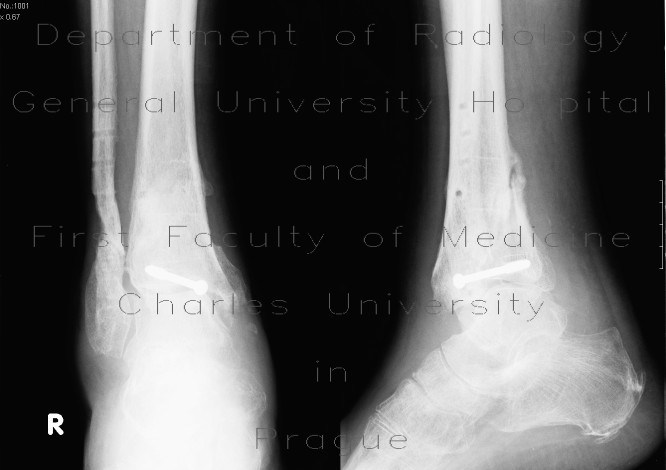 Radiology image - Bimalleolar fracture with fracture of the posterior edge of tibia, after removal of compreson plate: Extremity, Bone: X-ray - Plain radiograph