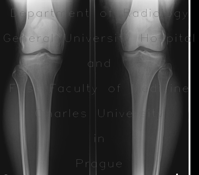 Radiology image - Bipartite patella: Extremity, Bone: X-ray - Plain radiograph