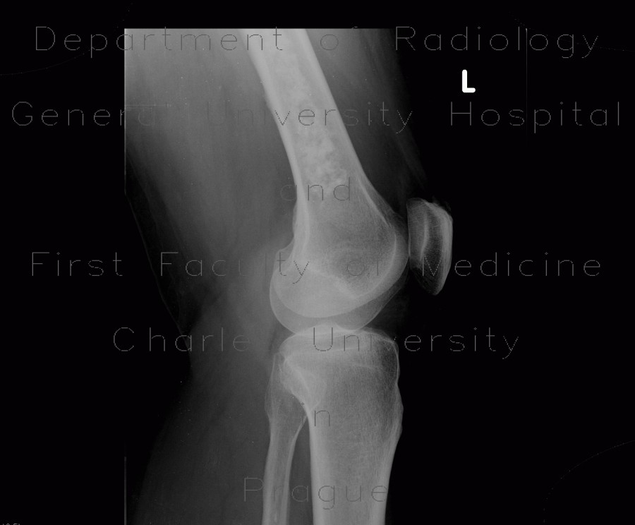 Radiology image - Bone infarction: Extremity, Bone: X-ray - Plain radiograph