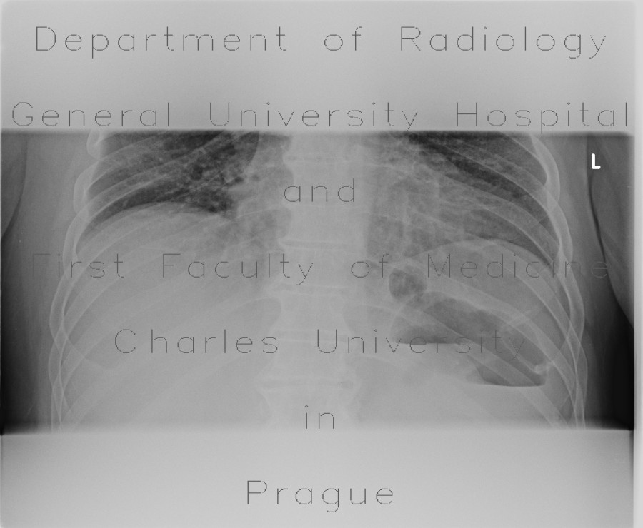 Radiology image - Bowel obstruction, carcinoma of sigmoid colon, SBO, ileus, colorectal cancer: Abdomen, Large bowel, Small bowel: X-ray - Plain radiograph