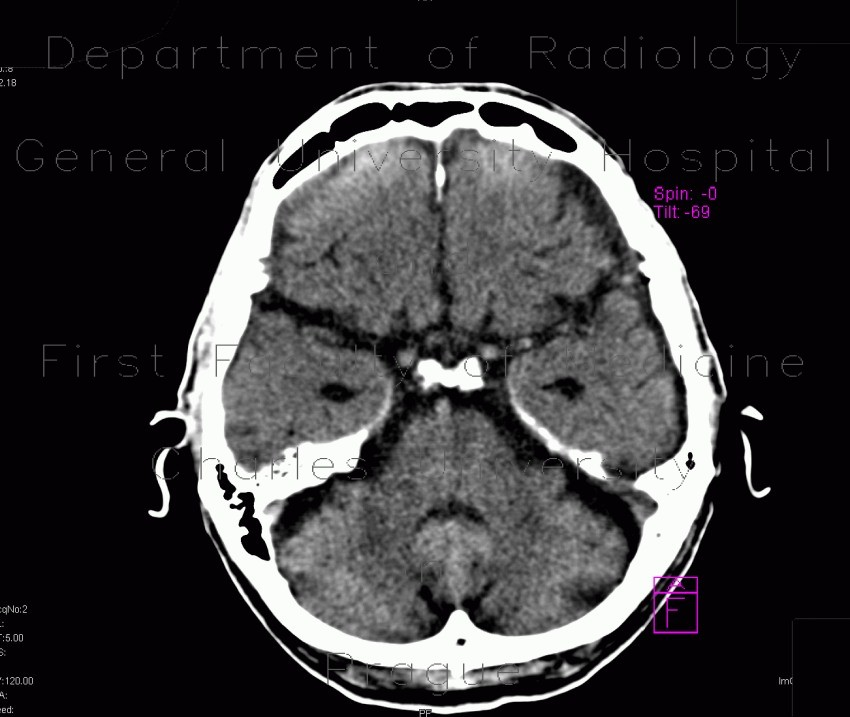 Radiology image - Brain contusion, subarachnoidal hematoma, beam hardening artifact: Brain, Brain: CT - Computed tomography