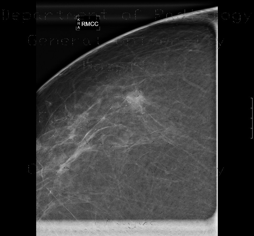 Radiology image - Breast carcinoma, small: Thorax, Breast: MMG - Mammography