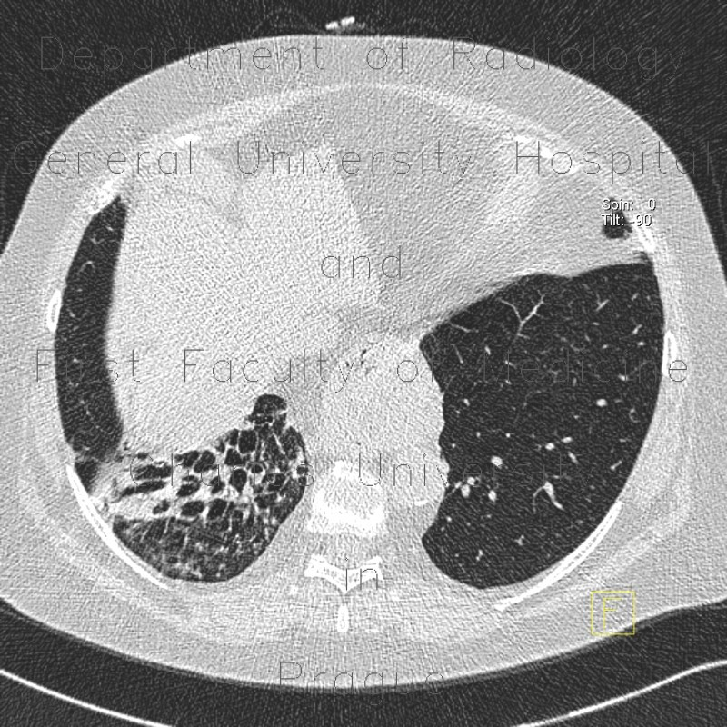 Radiology image - Bronchiectasia, HRCT: Thorax, Lung: CT - Computed tomography