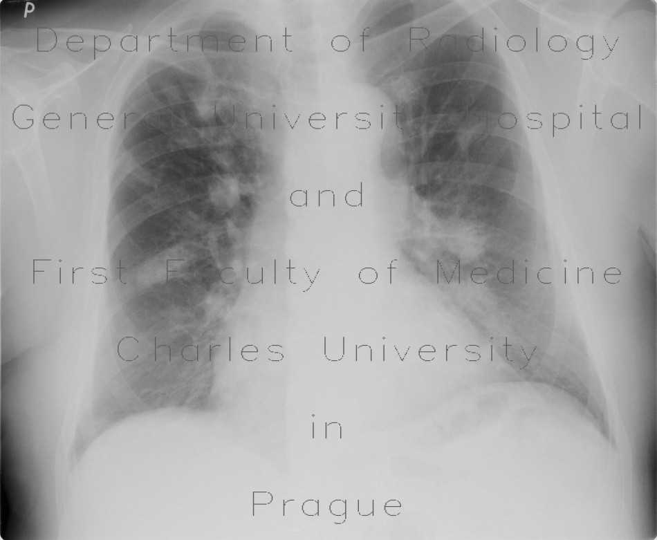 Radiology image - Bronchoinvasive aspergillosis, aspergillosis: Thorax, Lung, Mediastinum and pleural cavity: X-ray - Plain radiograph