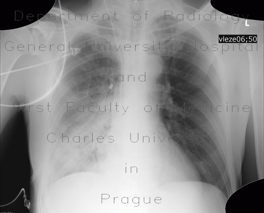 Radiology image - Bronchopneumonia: Thorax, Lung: X-ray - Plain radiograph
