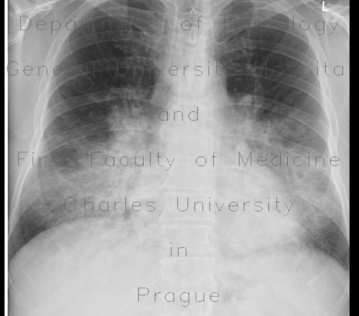 Radiology case: Bronchopneumonia, bilateral