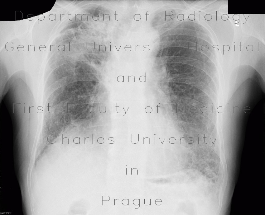 Radiology image - Bullous emphysema, lung tumour: Thorax, Lung: X-ray - Plain radiograph