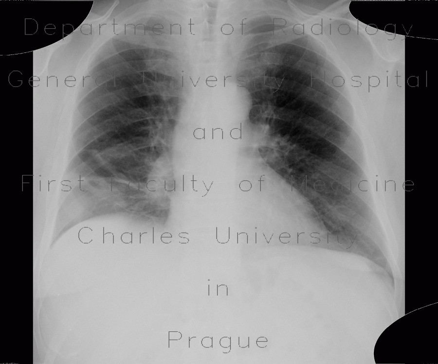 Radiology image - CT angiogram sign, acute lung embolism, lung infarction: Thorax, Lung, Vessels: X-ray - Plain radiograph