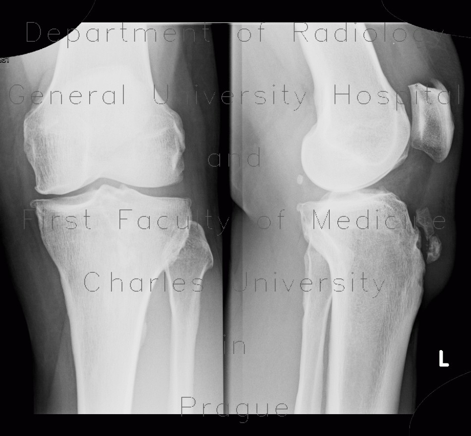 Radiology image - Calcification in patellar ligament, infrapatellar bursa: Extremity, Lung, Soft tissue: X-ray - Plain radiograph