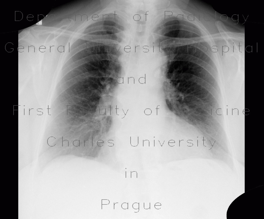 Radiology image - Calcified hilar lymph nodes: Thorax, Mediastinum and pleural cavity: X-ray - Plain radiograph