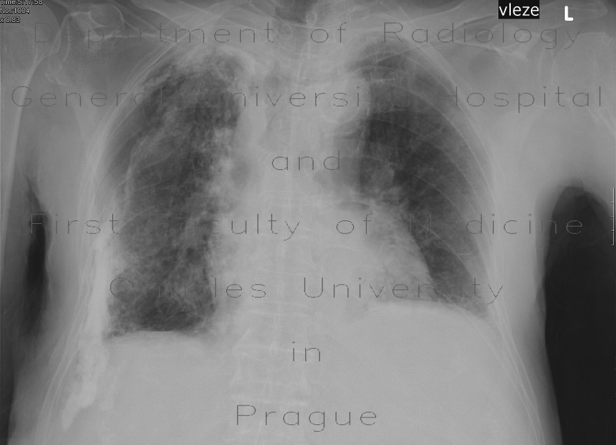 Radiology image - Calcified pachypleuritis, pachypleuritis calcarea: Thorax, Lung, Mediastinum and pleural cavity: X-ray - Plain radiograph
