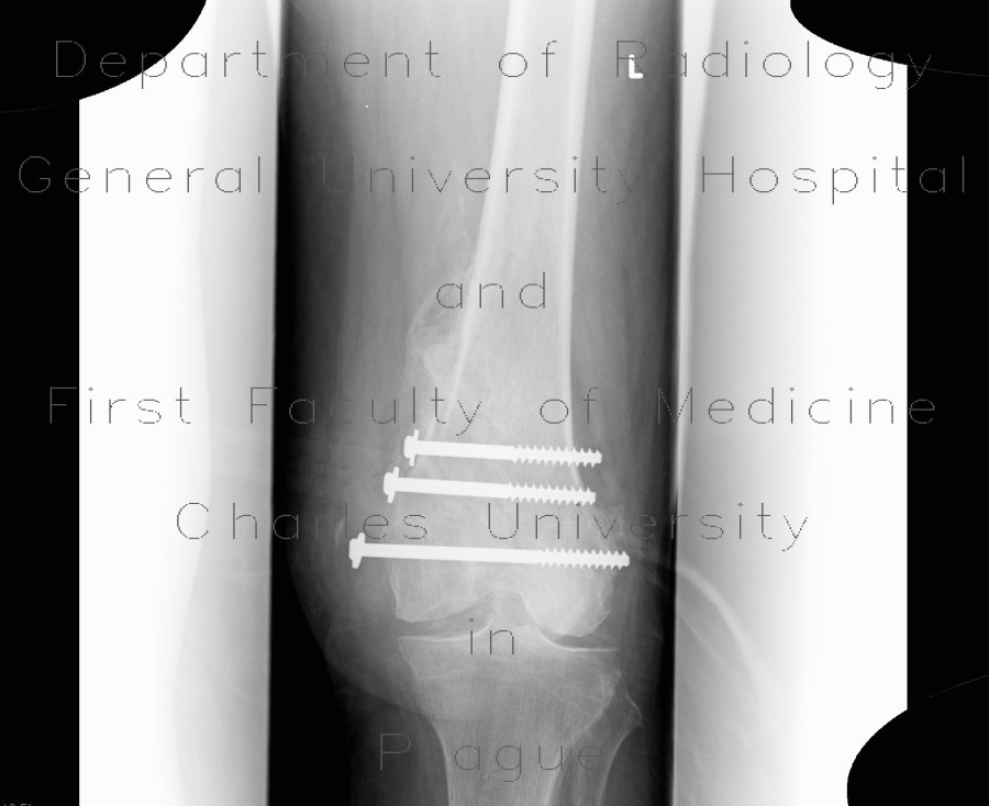Radiology image - Callus luxurians, callus, hypetrophic callus: Extremity, Bone: X-ray - Plain radiograph