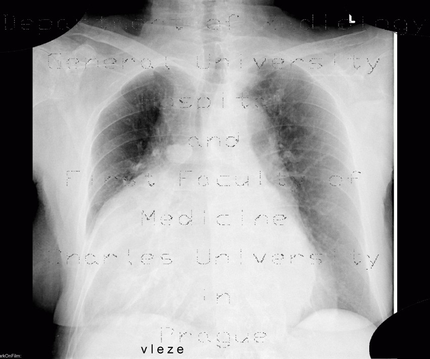 Radiology image - Cardiomegally, azygous vein: Thorax, Heart, Vessels: X-ray - Plain radiograph