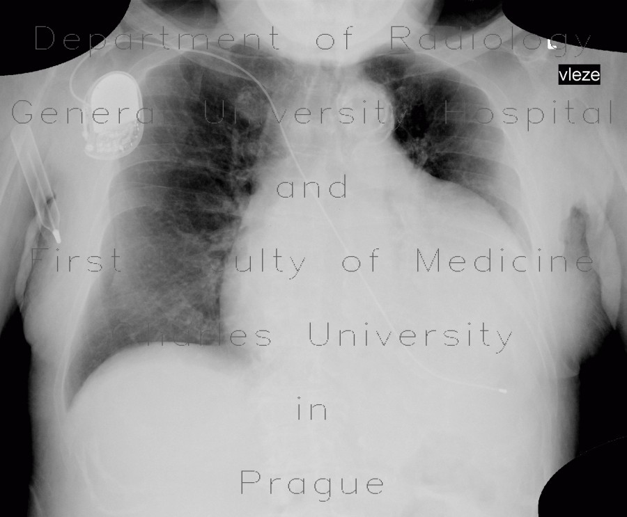 Radiology image - Cardiomegally on chest radiograph: Thorax, Heart, Other: X-ray - Plain radiograph