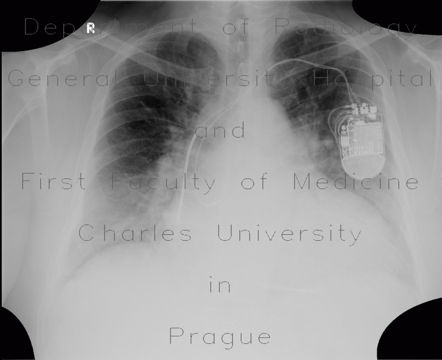 Radiology image - Cardiomyopathy, dilated cardiomyopathy: Thorax, Heart: X-ray - Plain radiograph