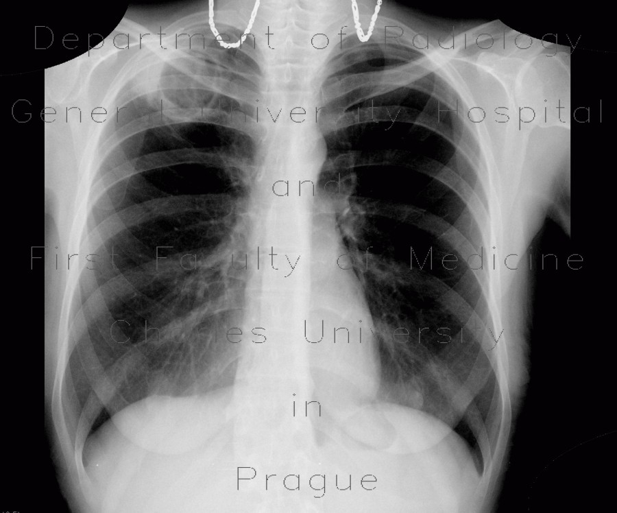 Radiology image - Cavity in the lung, cavern, TBC, tuberculosis: Thorax, Lung: X-ray - Plain radiograph