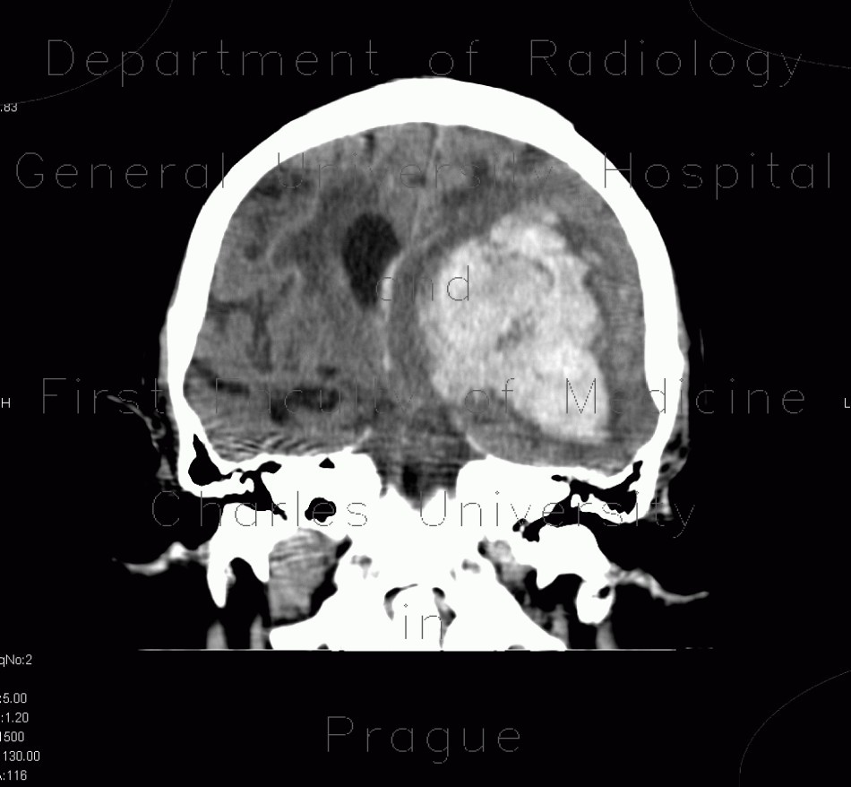 Radiology image - Cerebral hemorrhage, hypertonic hemorrhage, hemocephalus, subfalcine herniation, descendent transtentorial herniation: Brain, Brain: CT - Computed tomography
