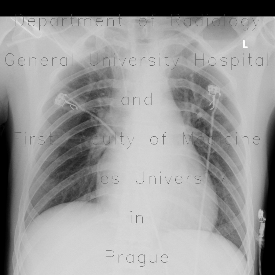 Radiology image - Cervical rib: Spine and Axial, Thorax, Bone: X-ray - Plain radiograph