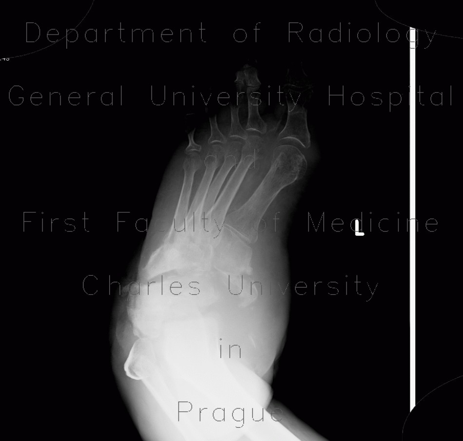 Radiology image - Charcot arthropathy, neuropathic osteoarthropathy, Charcot joint: Extremity, Bone: X-ray - Plain radiograph