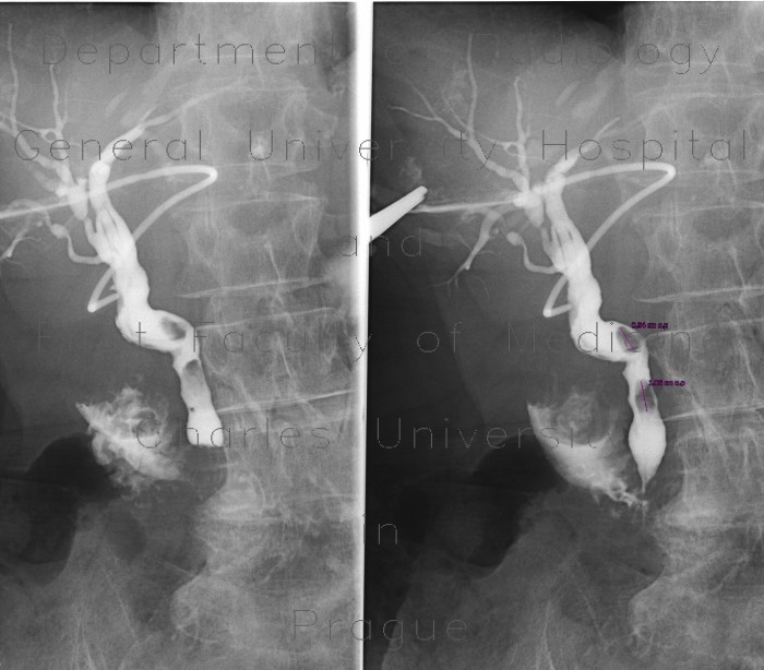 Radiology image - Cholangiography, T-drain, choledocholithiasis: Abdomen, Biliary tree: RF - Fluoroscopy