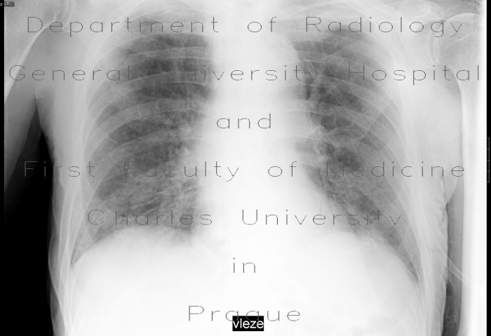 Radiology image - Chronic bronchitis, acute exacerbation: Thorax, Lung: X-ray - Plain radiograph