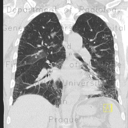 Radiology image - Chronic cardiac insufficiency, Kerley B lines: Thorax, Lung: CT - Computed tomography