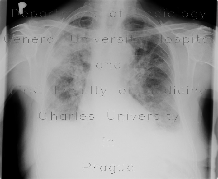Radiology image - Chronic postinflammatory changes, pachypleuritis, pleural effusion, traction bronchiectasia: Thorax, Lung, Mediastinum and pleural cavity: X-ray - Plain radiograph