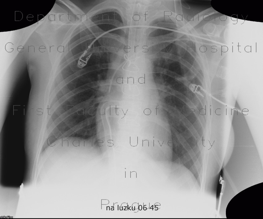 Radiology image - Circulatory assist device: Thorax, Heart: X-ray - Plain radiograph