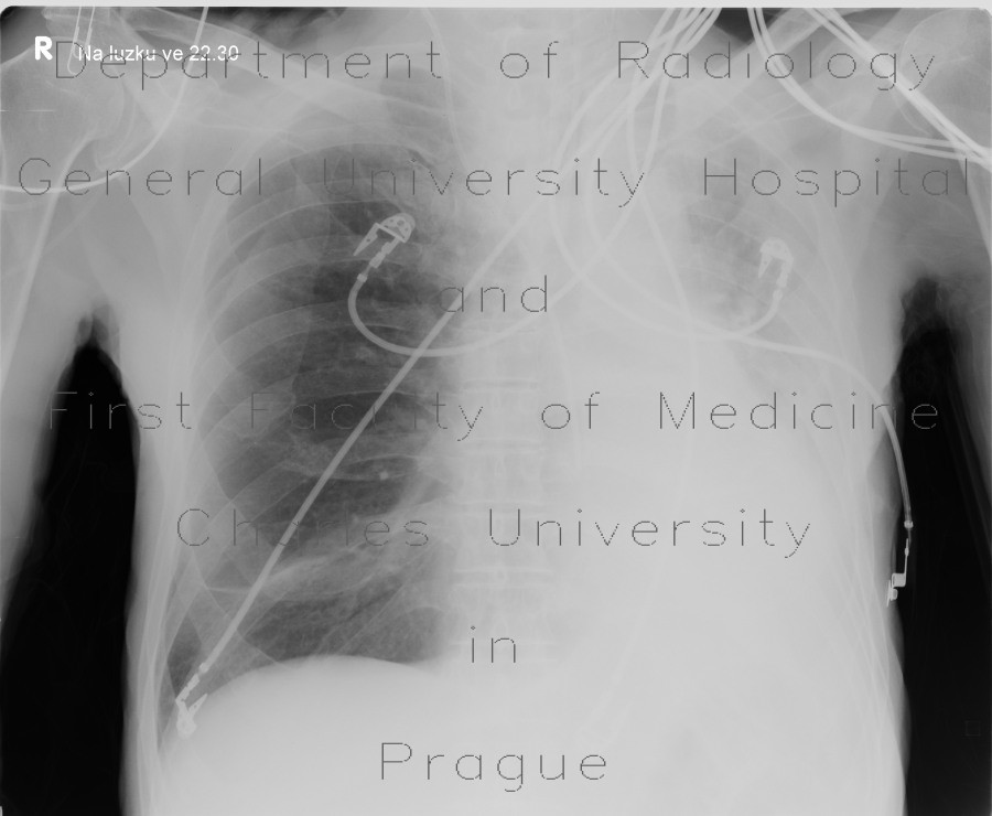 Radiology image - Collapse of pulmonary lobe, left lower lung lobe, LLL: Thorax, Lung, Mediastinum and pleural cavity: X-ray - Plain radiograph