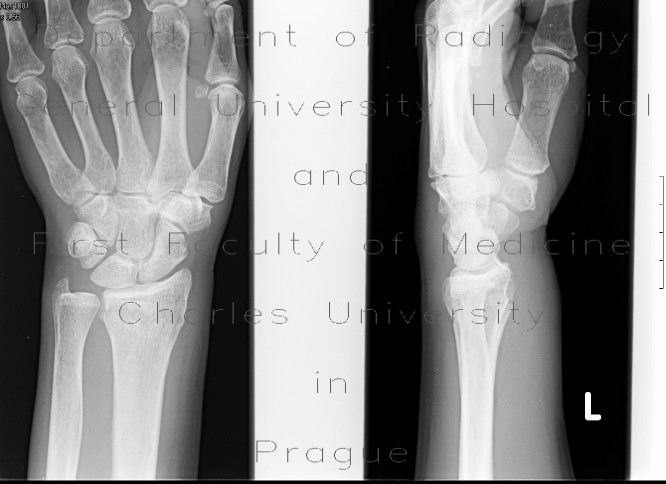 Radiology image - Colles fracture: Extremity, Bone: X-ray - Plain radiograph